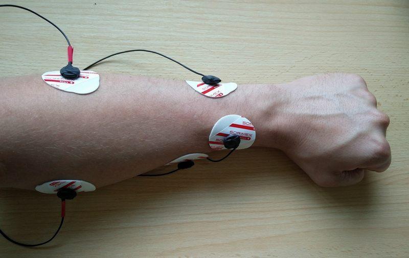 forehand-prosthesis-emg-signal-emg-processing-arduino-servomechanism