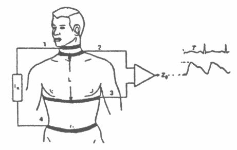 pacemaker-isaretini-yok-eden-devre-58-elektrokardiyogram-isaretlerini